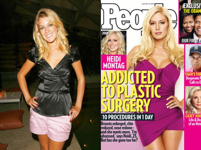 'Plastic Surgery Addict' Heidi Montag