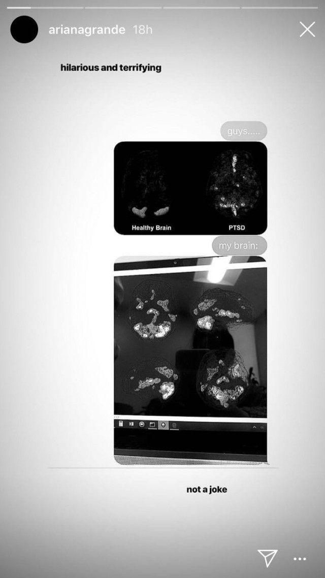Ariana Grande Brain Scan